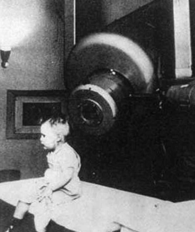 1st patient treated with the 6 MeV linac at Stanford University in 1956